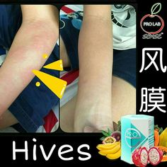 Remedy #Hives just intake 2sachet of #PROe ✌ Testimonial within few hours  以下见证前后才几个小时 摄取2包的 #PROe  成功改善 #风膜 的问题😊  #PROLABsense🍎 #招收代理批发零售  ~ Welcome To PM ~ Charlyne Chong Wechat:chiaki1990  Whatapps:016-7669597
