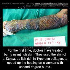 Pinterest the world s catalog of ideas for Fish skin for burns