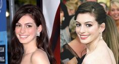 Anne Hathaway Nose Job Before and After