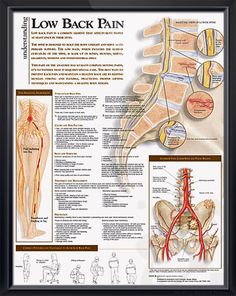 Low Back Pain anatomy poster shows lower spine, pelvis tumors, infections, degenerative disease, ankylosing sponylitis… Skeletal system chart for doctors and nurses.