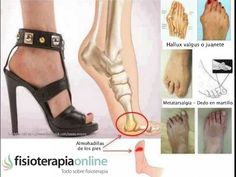 For Ladies: Do you like to wear High Heels? Then please read this & share with your friends. Prolonged wearing of high heels can cause a permanent damages like bunions, hammertoes, leg tendons. This are mainly caused due to pressure on ball of th Hammer Toe, Sore Feet, Heel Pain, Foot Pain, Bunion, Feet Care, Back Pain, Gladiator Sandals, Massage