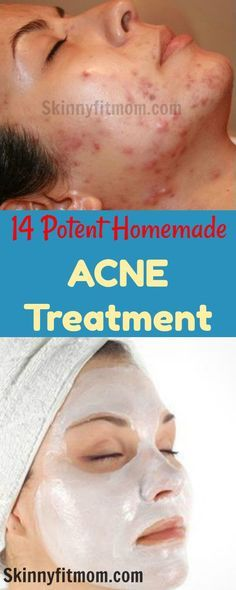 How to get rid of acne in two days