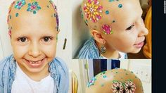 Gianessa gets creative with #alopecia we love it - Girl with alopecia wins competition with gorgeous jeweled head http://edition.cnn.com/2017/04/07/health/alopecia-girl-jeweled-trnd/index.html?utm_content=buffer1ae4a&utm_medium=social&utm_source=pinterest.com&utm_campaign=buffer