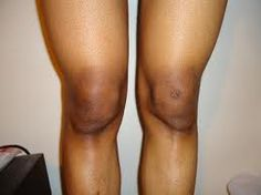 The other parts of your body that tend to be dark are your knees and elbow. If you do not do anything about it, your over all desirability and sexiness will suffer. Watch a YouTube video by clicking a bold text link in my Blogger post to know how to lighten your dark knees and elbow and click the link in the description box to learn more how to lighten dark parts of your body naturally.