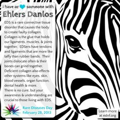 I just added this to my closet on Poshmark: Ehlers Danlos Syndrome. Price: $0 Size: twisted
