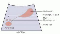 Right Upper Quadrant: Liver, Gallbladder, and Biliary Tree | Radiology Key