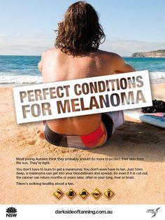 Campagne de prévention australienne contre le mélanome et le cancer de la peau, à destination des surfeurs.  En Australie, le cancer de la peau est un véritable enjeu de santé public.  Et vous, vous protégez votre peau du soleil ? Découvrez les maillots de bain anti uv Mayoparasol pour enfants et adulte http://www.mayoparasol.com/