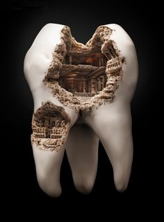 Roman Civilization Cavity is a part of a print advertising campaign for Maxam's toothpaste. The idea is to not let germs settle down on your teeth, or else you will end up with a Colosseum cavity. The design was made by agency JWT Shanghai. of two pins] Dental Art, Dental Teeth, Smile Dental, Smile Teeth, Braces Smile, Teeth Braces, Best Ads, Creative Advertising, Print Advertising