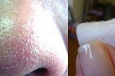 Nobody likes blemishes, I know that I don't, but I also do not like chemical creams. There are two categories for acne: pimples and cysts and whiteheads and blackheads. Whiteheads and blackheads ar… Get Rid Of Blackheads, Pimples, Skin Tips, Skin Care Tips, Acne Remedies, Blackhead Remedies, Natural Remedies, Blackhead Remover, Blackhead Mask