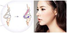 Có nên nâng mũi bọc sụn không? Phương pháp này có những ưu điển nổi bật giúp đầu mũi không bóng đỏ, sống mũi cao tự nhiên, khả năng thích ứng với cơ thể tốt