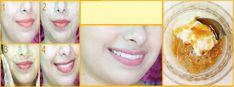 C'est un remède maison incroyable qui est un facteurde blanchiment facial naturel qui vous aide à blanchir votre peau facilement à la maison. Ce remède de blanchiment est totalement naturel et n'a aucunproduit chimique nocif et il peut faire des merveilles pour votre peau: illumine et allège votre teint dans 15 jours. Ingrédients requis : …