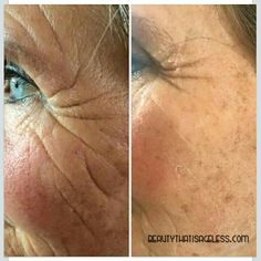 Talk about WRINKLE FREE!! Instantly Ageless™ works as well as this picture shows!!   Jeunesse does not endorse personal testimonies.