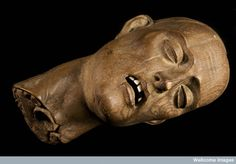 This unusual artifact originates from an abbey in the Champagne region of France during the 16th century. It is a carved wooden piece depicting a beheaded Christian martyr, showing accurate anatomical detail of the spinal cord, oesophagus and vertebrae with teeth made from ivory. Photograph courtesy of Science Museum, London, Wellcome Images. ~~ www.facebook.com/TheIrregularAnatomist ~~ www.twitter.com/Irr_Anatomist
