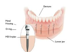 Mini Implants help anchor dentures so they look and feel more like natural teeth.