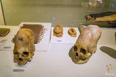 Cráneos vestigios de práctica de trepanación, cultura Paracas Ica Perú