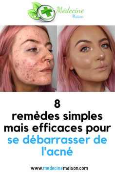 Natural Health Remedies, Acne Remedies, Short Hair Styles, Health Fitness, Muscle, Skin Care, Beauty, Aloe Vera