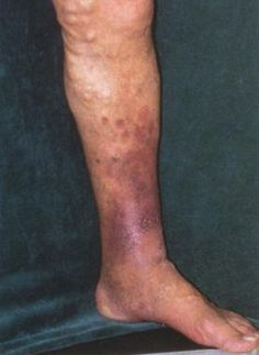 Common chronic symptoms of varicose veins include, leg heaviness, burning sensations, skin changes, and more.