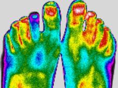 Imagerie thermique de pieds de jeune fille