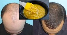 Un masque fait maison très efficace qui favorise la pousse des cheveux. Comment favoriser la pousse des cheveux ?