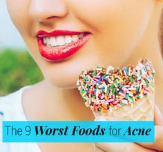 9 Foods That Cause Acne. Foods That Cause Acne In Adults Food For Acne, Free Diet Plans, Bad Acne, Acne Causes, Food That Causes Acne, Acne Oil, Acne Spot Treatment, Acne Spots, Acne Free