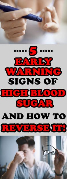 5 Early Warning Signs of High Blood Sugar And How to Reverse It ! Hyperglycemia is the medical term for high blood sugar. Health Remedies, Home Remedies, Natural Remedies, Healthy Weight Loss, Weight Loss Tips, Cute Pug Pictures, High Blood Sugar, Warning Signs, Alternative Medicine