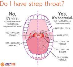Do_I_Have_Strep_Throat.png 600×552 pixels