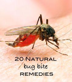 Summer Care Tip: 20 Natural Bug Bite Remedies | OnePartSunshine.com