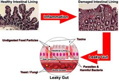 The best explanation of Leaky Gut I've seen - if you've tested positive for multiple food sensitivities, it's a big sign that Leaky Gut is the root of your problem!