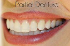 Partial denture is essential #LakeWorth #Florida #Dentist, health, Dr. Suarez #Cosmetic