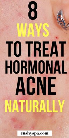 How to Treat Hormonal Acne Naturally: 8 Treatments 8 acne remedies to have a smoother, more glowing skin. I'm sharing 8 acne treatments that should help you to control your hormonal acne. Cystic Acne Treatment, Back Acne Treatment, Natural Acne Treatment, Skin Care Treatments, Natural Skin Care, Natural Face, Natural Beauty, Teen Boys, Skin Care
