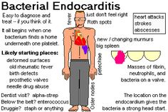 Endocarditis, myocarditis and pericarditis (Systemic infection ...