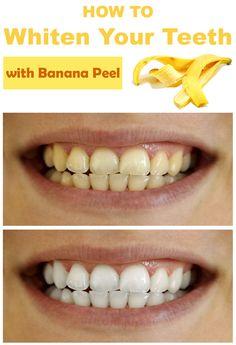 How to Whiten Your Teeth with Banana Peel →