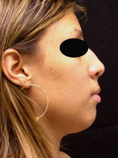 Best rhinoplasty surgeon in new york city Dr. Halaas is experienced with rhinoplasty surgery for nose jobs in new york and helps nasal surgery patients. Nose Jobs, Rhinoplasty Surgery, Facial, Nyc, Plastic, York, Watch, City, Youtube