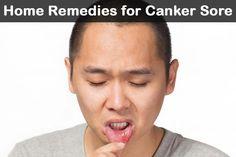 Canker Sore