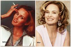 Jessica Lange #plasticsurgery #celebrity