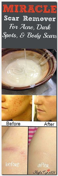 #skincare #skin #care how to take care of skin daily at home, the skin store, how to get flawless skin at home, what is the reason of acne, some beauty tips for glowing face, eczema acne, beauty personal care, sun mark, witney skin care clinic, dry itchy
