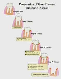 Progression of Gum Disease and Bone Disease  #Dentaltown #Dentistry #HowardFarran Google+