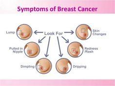 Symptoms of Breast Cancer # Oncoplus Hospital Helpline Number #85-88-90-90-91 www.oncoplus.co.in #BestOncologySurgeon  #BestCancerSurgeon #ChemotherapyInDayCare