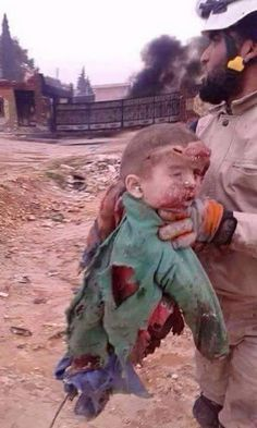 Syrian Children, History Facts, Do Anything, Garden Sculpture, American, Photography, Blood, Wicked, Syria