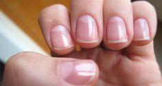 Muchas de las mujeres que noshemos pintado las uñas por los últimos años, nos encontramos en un grave y vergonzoso problema. Nuestras uñas se ven amarillas, pues el esmalte las ha dañado drásticamente. Por eso hoy les daré algunos tips que a mí me han funcionado bastante, espero que les puedan ayudar. 1. Pasta blanqueadora […]