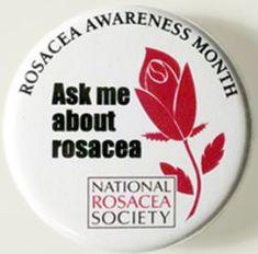 April is Rosacea Awareness Month.  #researchacrossamerica #rosaceaawareness