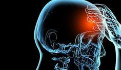 Células madre podrían ayudar después de un derrame cerebral