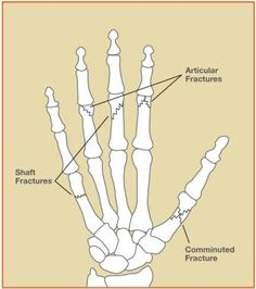 Figure 1 - Examples of fractures in fingers