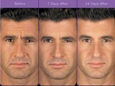 before after eyes botox before and after pictures - Yep for Men too! Botox vor und nach Bildern - Yep for Men auch! Botox Fillers, Dermal Fillers, Face Fillers, Marie Osmond, Vintage Beauty, Facial Esthetics, Laser Eye Surgery Cost, Botox Before And After, Facial Anatomy