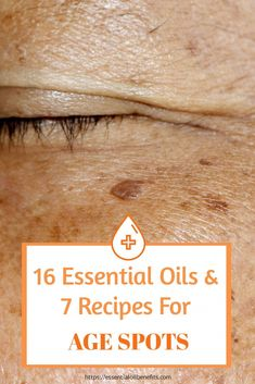 No one wants age spots. But they happen. So how can you naturally get rid of age spots on your face? Here are some essential oils you can use for age spots to help reduce the discoloration and lead to a flawless face. Age Spot Removal, Skin Tag Removal, Best Age Spot Remover, Essential Oils For Face, Essential Oil Blends, Age Spots On Face, Natural Hair Mask, How To Make Oil, Oil Benefits