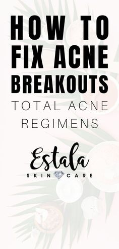 How to fix acne breakouts - total acne regimens! Still fighting stubborn acne? Learn about the things that cause acne in adults and how to get rid of acne and prevent breakouts from Estala Skin Care. The best skin care, acne skin care, face care, and acne Oily Skin Treatment, Back Acne Treatment, Skin Care Treatments, Facial Skin Care, Natural Skin Care, Acne Reasons, Face Care Tips, Skin Growths, Dry Skin Remedies