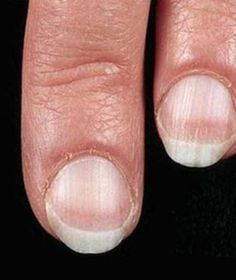 What Do Your Fingernails Tell You About Health