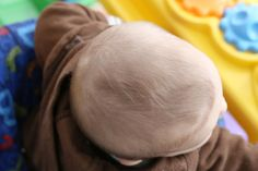 How to Treat Dry Scalp in Babies