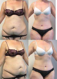 Plastie ventre tunisie est une intervention esthétique et plastique qui sert à raffermir le ventre et à supprimer son excédent de peau http://www.tunisie-chirurgie-esthetique.org/augmentation-mammaire.html