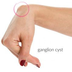 Ganglion cysts are quite common, usually harmless and sometimes uncomfortable. Here's a simple and natural way to gang up on a ganglion before considering an invasive medical procedure. Once you're sure this cyst that's usually found on the back of the hand, top of wrist and is most common to women is indeed a ganglion …